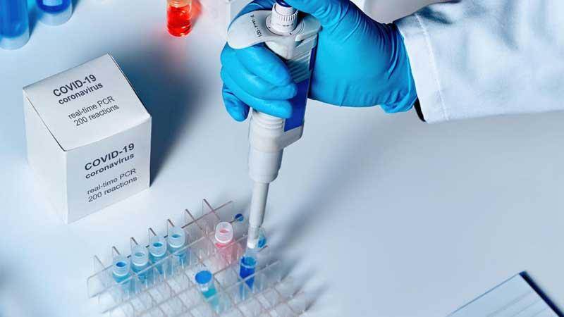 हालसम्म साढे ५१ हजार पिसीआर परीक्षण, ६८२ कोरोना संक्रमित, आइसोलेशनमा ५६७ जना, यस्तो छ अन्य विवरण