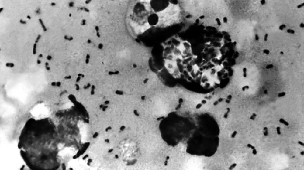 कोरोना पछि खतरनाक प्लेग चीनमा भेटियो, महामारी फैलने चिन्ता